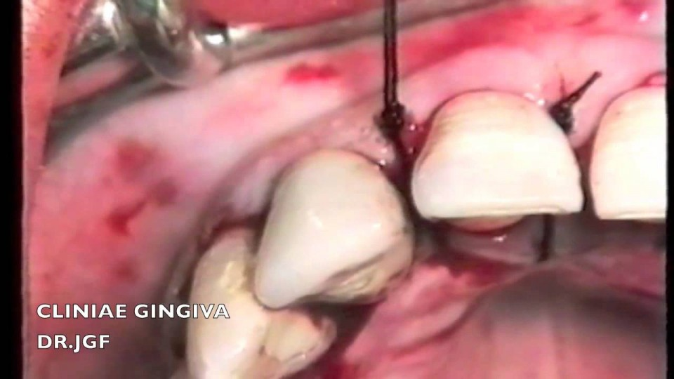 SUTURING THE GUMS. SUTURAS EN PERIODONCIA – Revista MAXILLARIS
